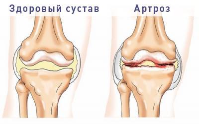 Застывшие суставы суставы у человека